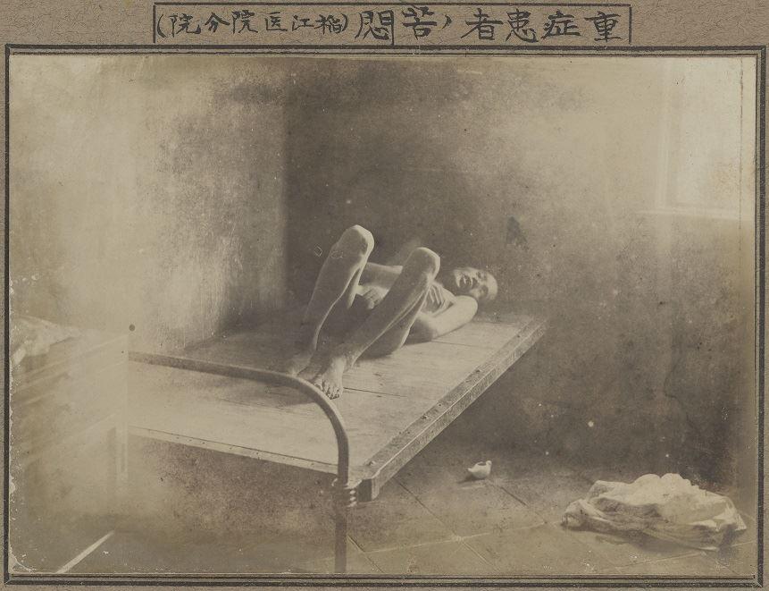 重症患者的苦悶(稻江醫院分院)